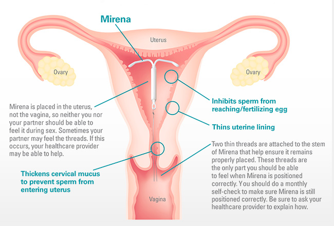 Mirena IUD - MacArthur Medical Center